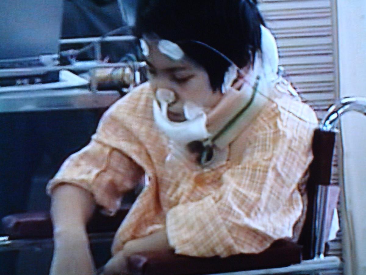 2003年の受傷後、意識を回復した水上さん